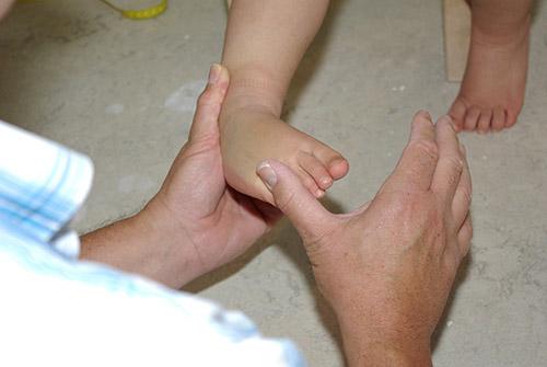 Kindervoet hypermobiliteit